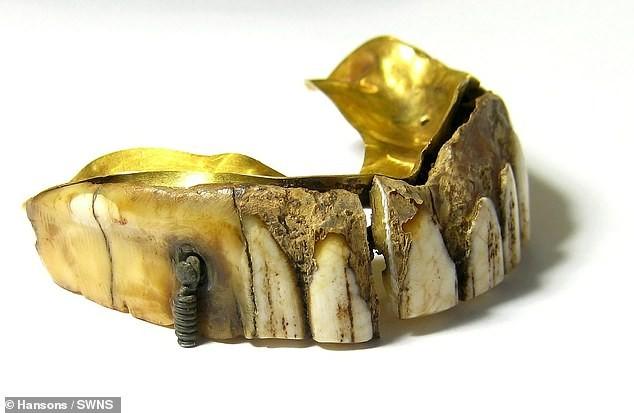 Hàm răng giả gắn vàng 200 năm tuổi giá ước tính hàng trăm triệu đồng - ảnh 2
