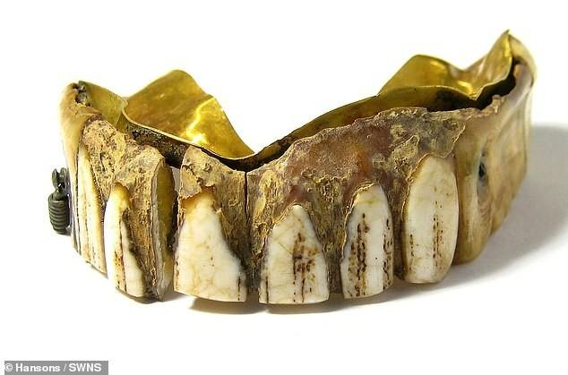 Hàm răng giả gắn vàng 200 năm tuổi giá ước tính hàng trăm triệu đồng - ảnh 1