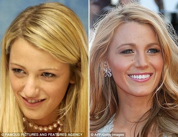 Gương mặt các sao Hollywood sau phẫu thuật - ảnh 5