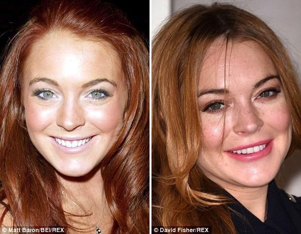 Gương mặt các sao Hollywood sau phẫu thuật - ảnh 6