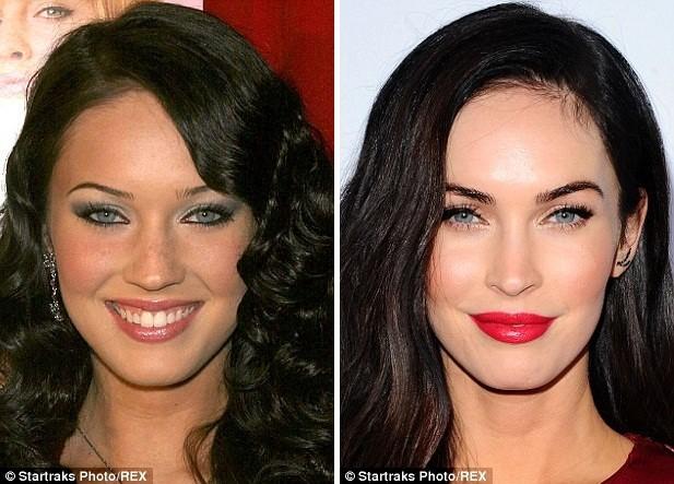 Gương mặt các sao Hollywood sau phẫu thuật - ảnh 8