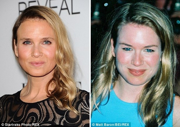 Gương mặt các sao Hollywood sau phẫu thuật - ảnh 1