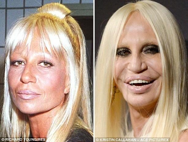 Gương mặt các sao Hollywood sau phẫu thuật - ảnh 2