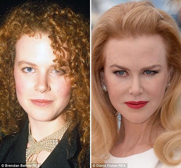 Gương mặt các sao Hollywood sau phẫu thuật - ảnh 4