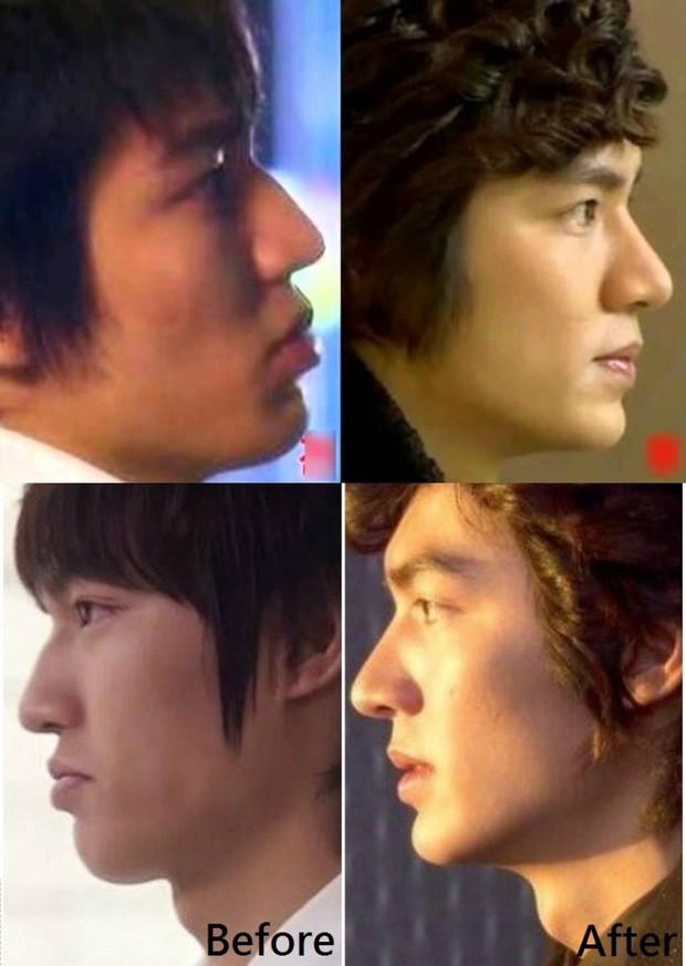 Lee Min Ho khiến Kim Go Eun xao xuyến vì chiếc mũi cực phẩm - ảnh 6