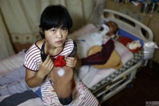 Cô bé 15 tuổi đóng giả bò kiếm tiền chữa bệnh cho cha - ảnh 1