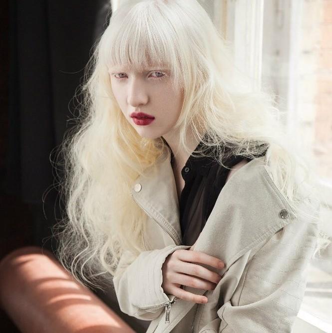 Vẻ thoát tục tựa 'công chúa tuyết' của người mẫu bạch tạng đẹp nhất thế giới - ảnh 1