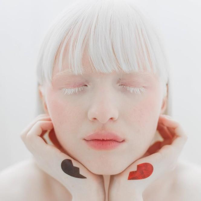 Vẻ thoát tục tựa 'công chúa tuyết' của người mẫu bạch tạng đẹp nhất thế giới - ảnh 9