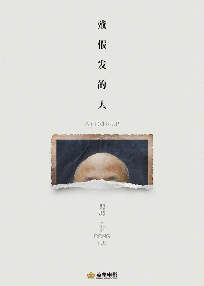 Giật mình với hình ảnh gầy rộc, hói đầu như ông lão 60 tuổi của Huỳnh Hiểu Minh - ảnh 4