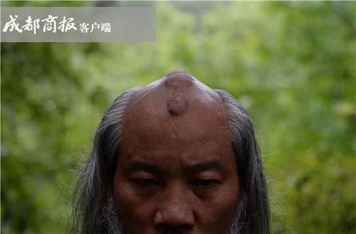 Đầu ông Hà Đạo Quân nổi nốt chai do nhiều năm luyện Thiết Đầu Công. Ảnh: Chengdu Shangbao.